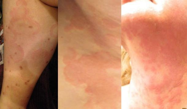 This disease makes life painful, but you've probably never heard of it before. Chronic Idiopathic Urticaria is a challenge for many.| Wellness | Medicine | YummyMummyClub.ca