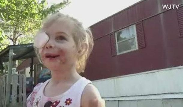 girl attacked by pit bulls