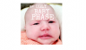 ugly, baby, phase, newborn, 5 weeks, baby acne, cradle cap, comedy, mr. burns