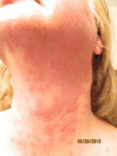 This disease makes life painful, but you've probably never heard of it before. Chronic Idiopathic Urticaria is a challenge for many. | Wellness | Medicine | YummyMummyClub.ca